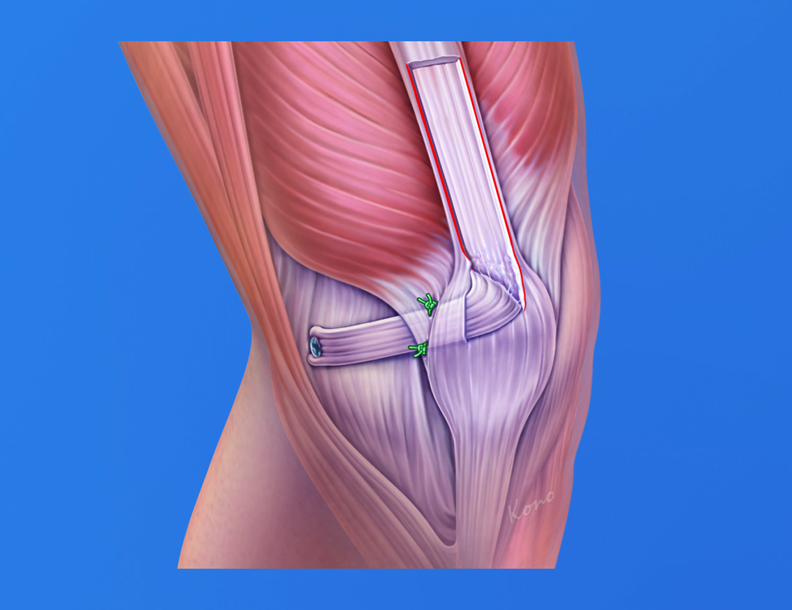 Tendinitis - Pictures, posters, news and videos on your pursuit ...